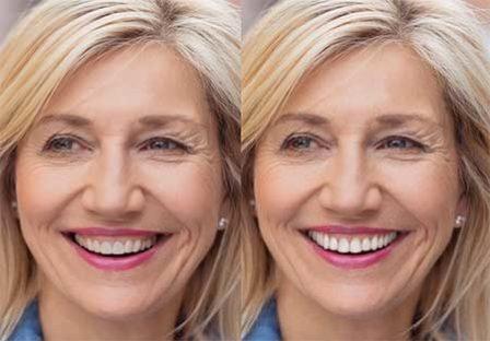 Hylan Dental Care